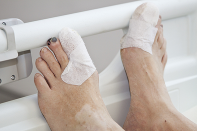 Too many diabetes-related foot problems are resulting in amputation (Photograph: SPL)