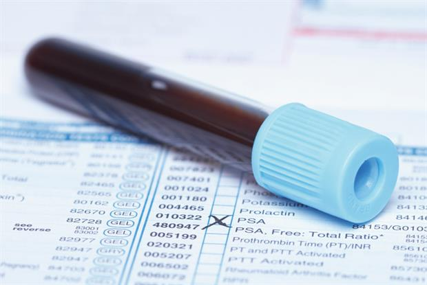 PSA test: researchers say screening harms outweigh benefits (Photo: SPL)