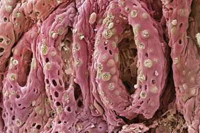 A scanning electron micrograph image of the bowel of a patient with ulcerative colitis (Photo: Steve Gschmeissner/SPL)