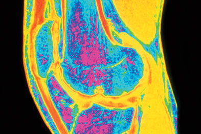 Knee OA pain: duloxetine produces significant improvement in reported pain and associated depression (Photograph: Simon Fraser, Royal Victoria Hospital/SPL)