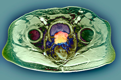 Coloured axial MRI scan of a patient with prostate cancer (Photograph: SPL)