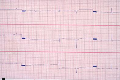 Hyperthyroidism causes tachycardia while hypothyroidism causes bradycardia (as shown)