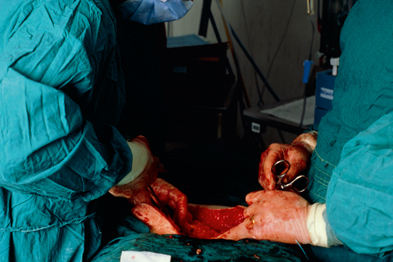 Hysterectomy was shown to be the preferred strategy for heavy menstrual bleeding (Photograph: SPL)