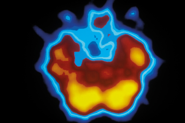 CT and PET scans:epilepsy is shown by extended orange region (right)