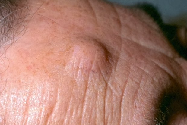 Differential diagnoses - Benign skin lesions | GPonline
