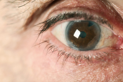 Glaucoma:  The guide identifies why commissioners might look to redesign eye care services: Istock