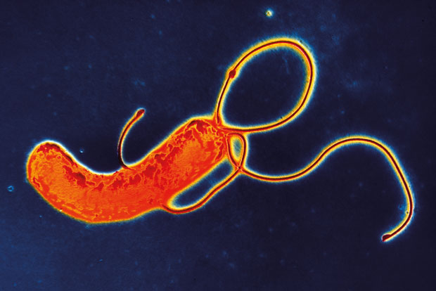 H pylori may be associated with gastric and duodenal ulceration