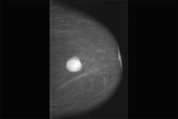 Clinical Review: Benign breast disease | GPonline