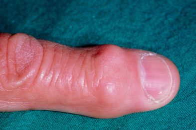 Herberden's nodes on the finger of a patient with osteoarthritis
