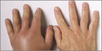 Oedema, erythema and pain at the site of the sting develops over hours and settles within a few days