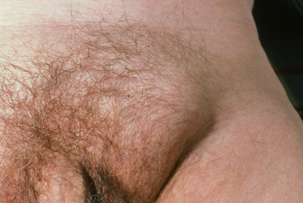 Red Flag Symptoms Groin Swelling Gponline