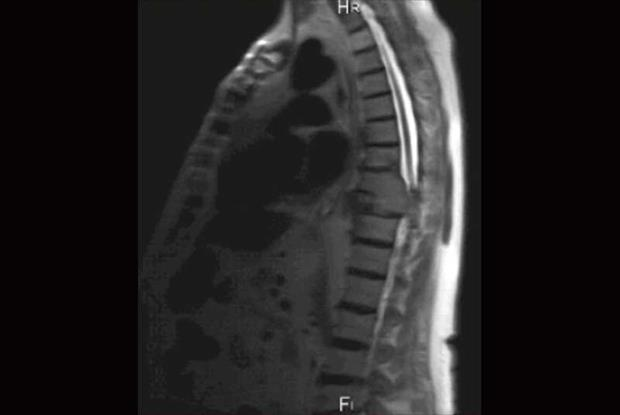 The MRI scan showed infilrated lesion involving T3 and T4