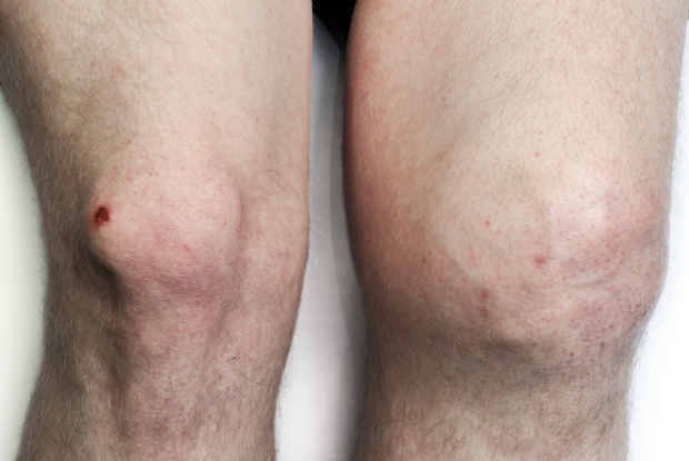 Osteoarthritis: jab could repair cartilage (Photo: Science Photo Library)