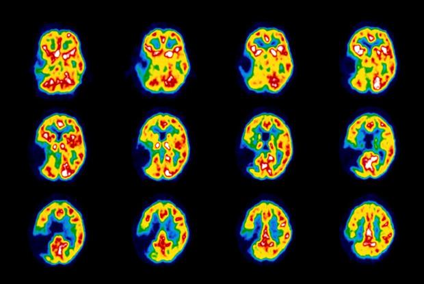 Stroke: coloured PET scan of a stroke patient's brain (Photo: Science Photo Library)