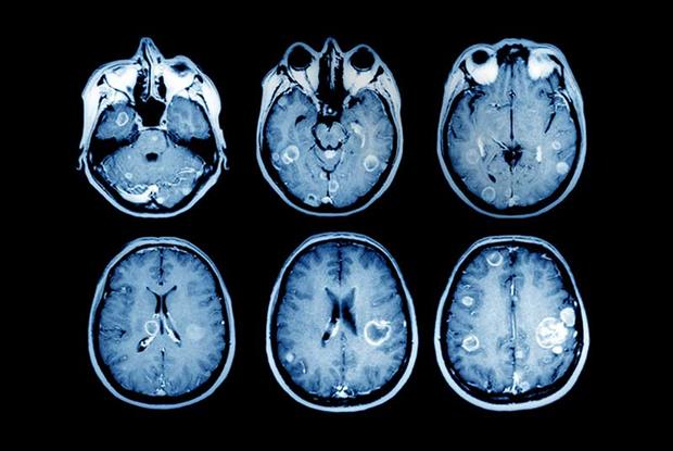 MRI scans showing brain tumours: many CCGs in England are denying GPs direct access (SPL)