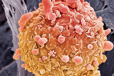 A scanning electron micrograph of a melanoma cancer cell (Photo: SPL)