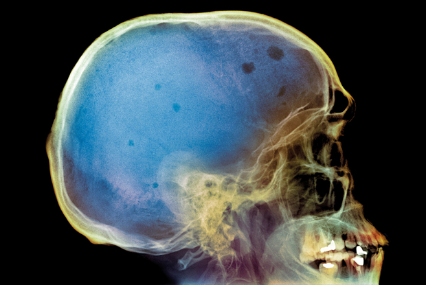 Coloured X-ray of the skull of a patient with myeloma, showing multiple lesions (dark grey and dark blue) (Photo: SPL)