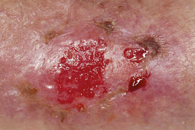 Infected arterial ulcer (Photograph: SPL)