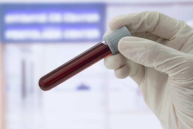 Blood sample (Photo: iStock)
