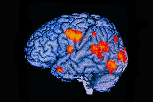 Areas of brain activity (orange) in an hallucinating schizophrenia (SPL)