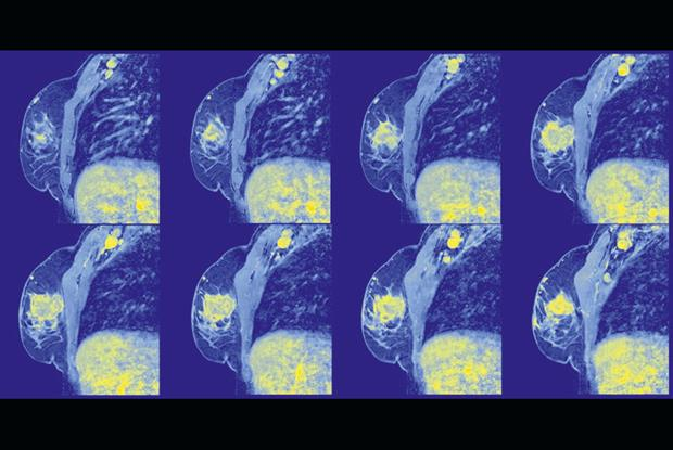 Coloured MRI scans of a 58-year old woman's right breast and thorax, showing adenocarcinoma (yellow area in the breast) (SPL)
