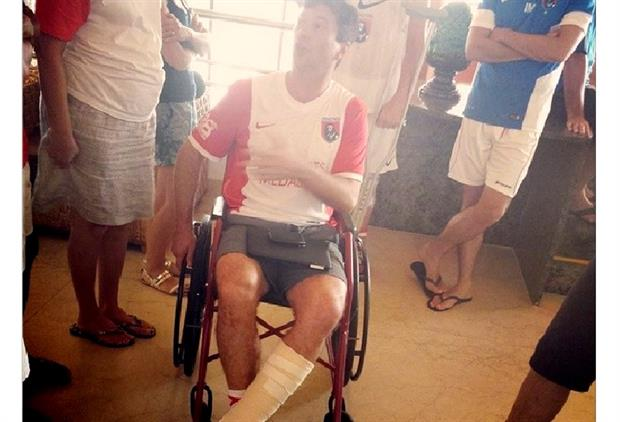 Dr Paul Fourie after rupturing his Achilles tendon (Photo: British Medical Football team)