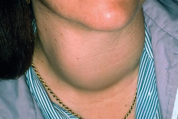 It is important to check for goitre in cases of thyrotoxicosis (Photo: SPL)