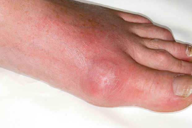 Gout: inflamed joint at the base of the big toe in a 54-year old male patient experiencing an acute episode