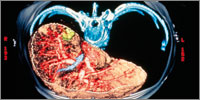 Patients with hepatitis may develop long-term liver cirrhosis