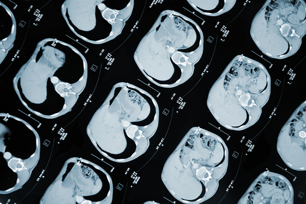 CT scan showing stomach cancer: The breath test could help reduce referrals for endoscopies (Photo: iStock.com/choja)