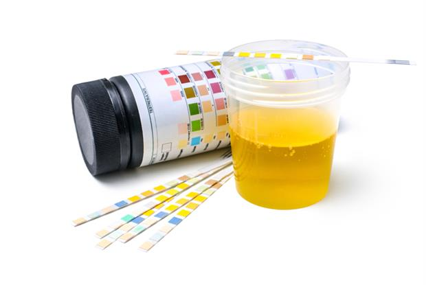 Urine sample (Photo: iStock)