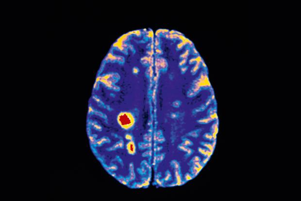 MRI brain scan of a patient with MS: the cause remains unknown (Photo: SPL)