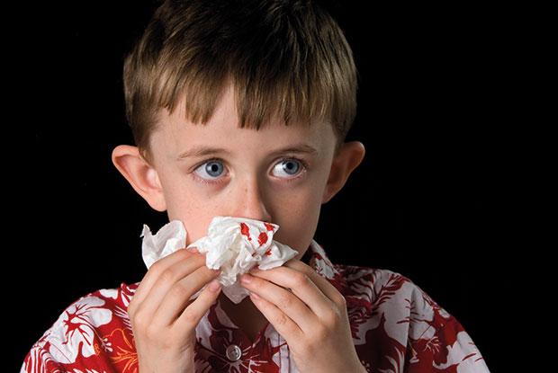 Managing epistaxis in children | GPonline