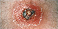 A skin abscess may develope after a minor wound