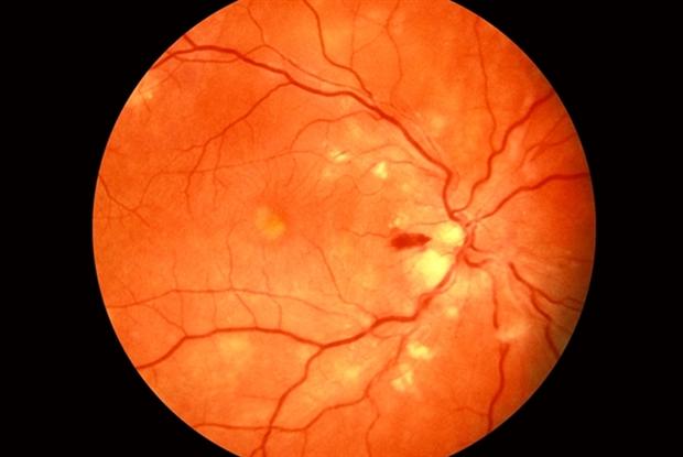 chronic retinopathy