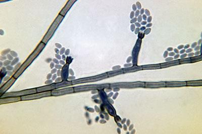 Conidia-laden conidiophores of a Phialophora verrucosa fungal organism