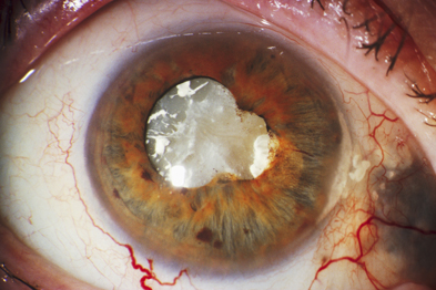 Cataract: no significant association found with estrogen exposure. Photograph: Sue Ford/SPL