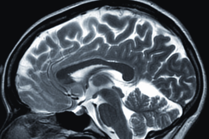 TV and the brain