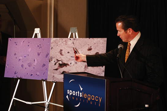 Benoit study spurs launch of Sports Legacy Institute