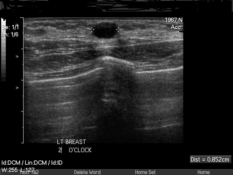Ultrasound scan showing a simple cyst in the breast (Author image)