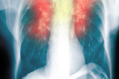 COPD: NICE guidance is changing
