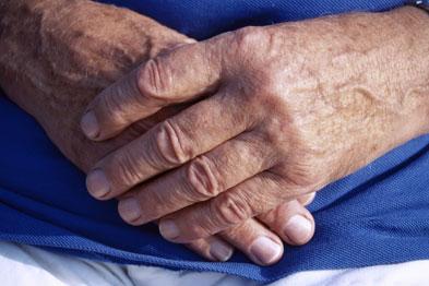 psoriasis management cks pikkelysömör helyi típusú kezelés