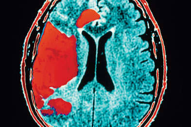 Stroke: risk was lowered with self adjusted anticoagulant dosing