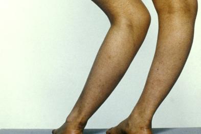 Gps Given Vitamin D Prescribing Advice Gponline