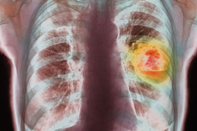 Chest x-ray did not seem to be a useful screening test for lung cancer