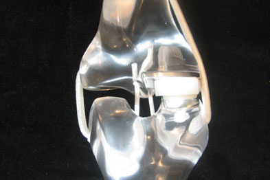 Model of Oxford knee replacement (medical compartment replaced)