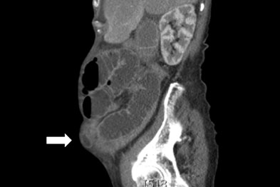 A sagittal CT demonstrating a small incisional hernia (arrow)