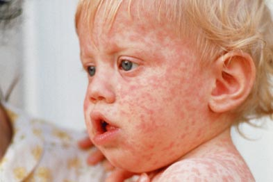 Measles: GPs warned about outbreaks in traveller communities (Photo: SPL)