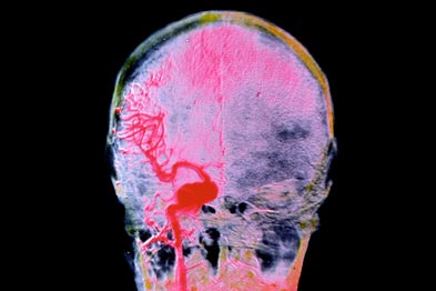 Stroke: many AF patients do not receive correct treatment (photo: SPL)