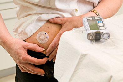 Insulin absorption rates could be increased by heating skin